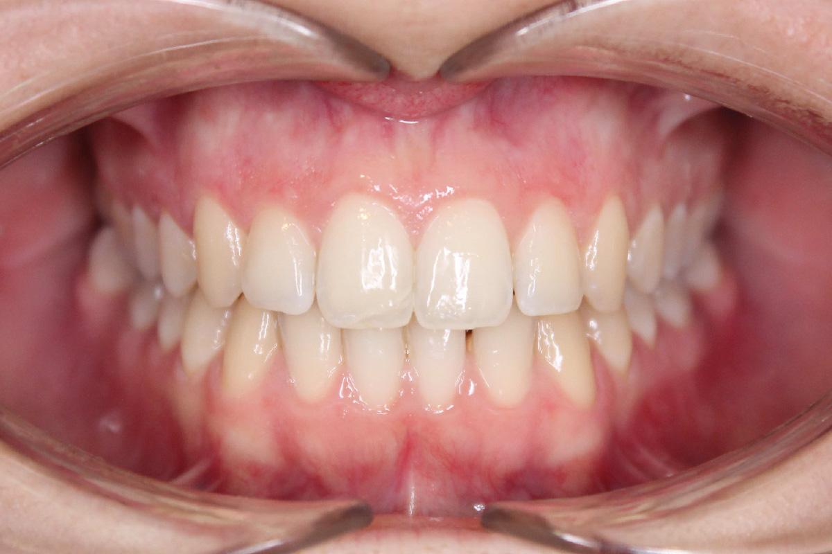 ortodontia para adultos papel da ortodontia dentro da reabilitao geral do adulto